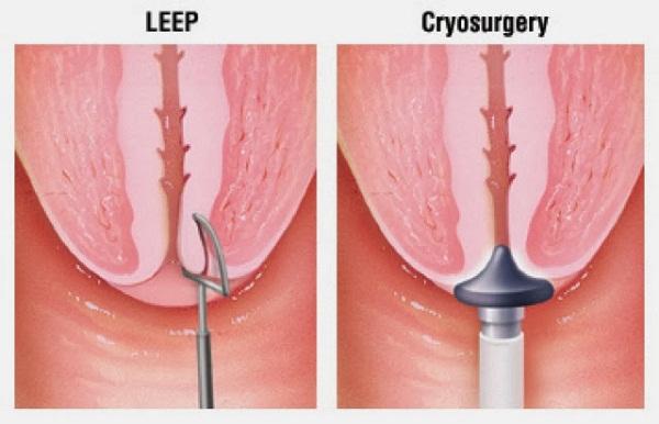 Khoét chóp tử cung là phương pháp điều trị nhằm bảo toàn khả năng mang thai cho người bệnh.
