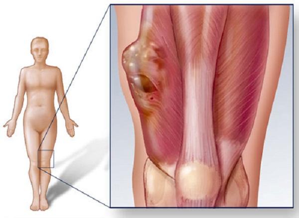 Khối u xâm lấn vào cơ, xương gây đau đớn cho người bệnh.