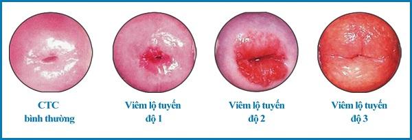 Các cấp độ viêm cổ tử cung.