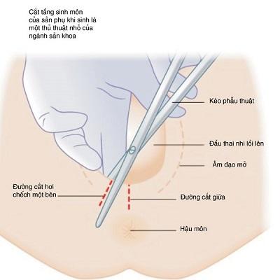 Đường rạch tầng sinh môn dài khoảng 2-4cm, bắt đầu từ đáy âm đạo và thường chếch sang một bên.