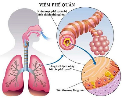 Biến chứng viêm phế quản do cảm lạnh ở trẻ.