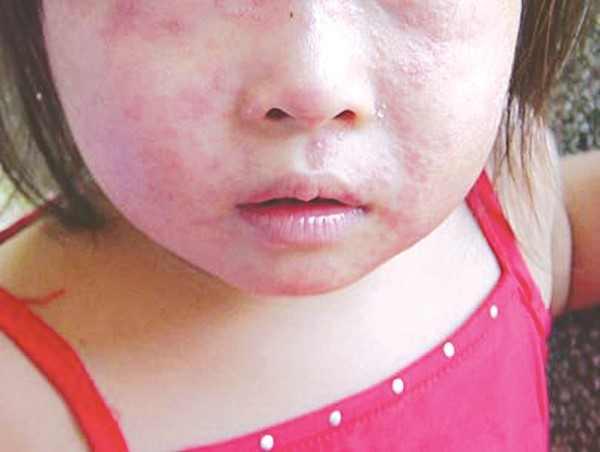 Các thương tổn dễ nhận biết nhất trên vùng da mặt của trẻ
